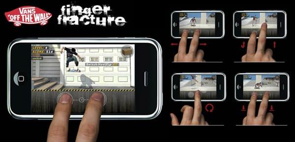 vans finger fracture.jpg