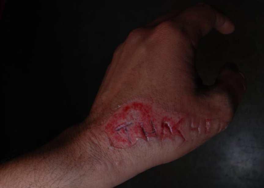 thrasher magazine scar tattoo